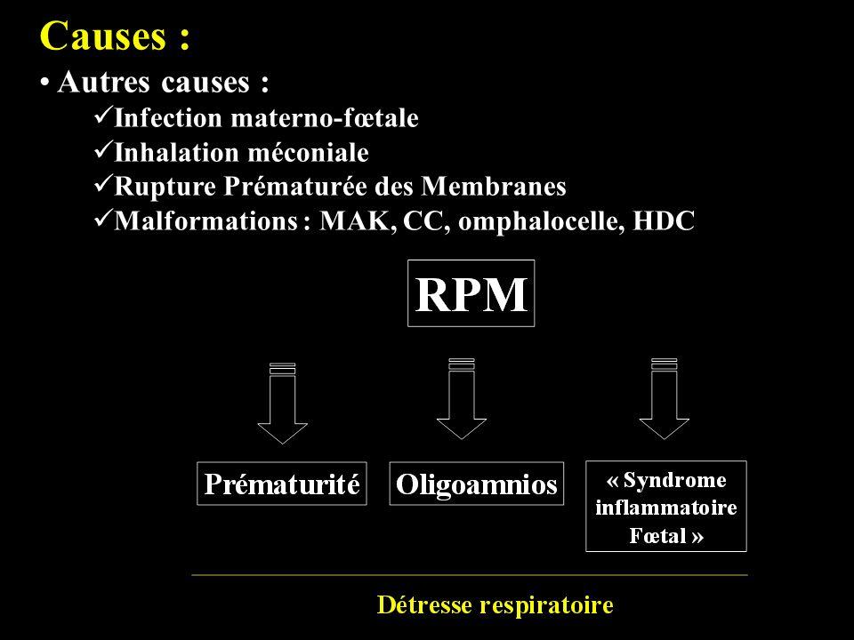 Causes : Autres causes : Infection materno-fœtale Inhalation méconiale Rupture Prématurée des Membranes Malformations : MAK, CC, omphalocelle, HDC