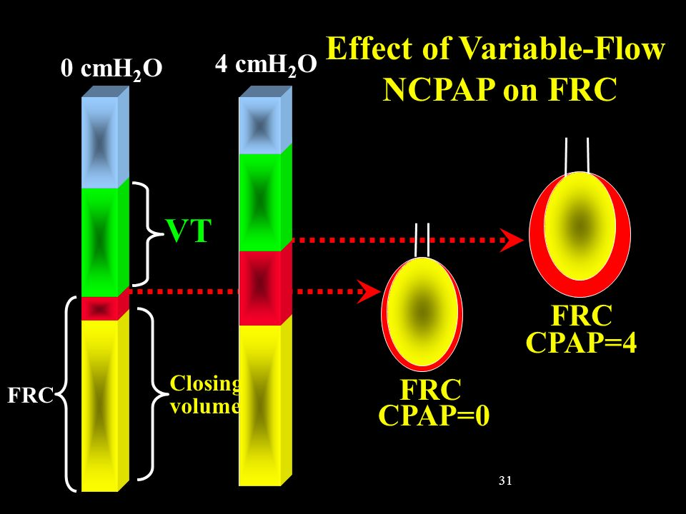 31 VT Effect of Variable-Flow NCPAP on FRC FRC CPAP=0 FRC CPAP=4 0 cmH 2 O 4 cmH 2 O Closing volume FRC