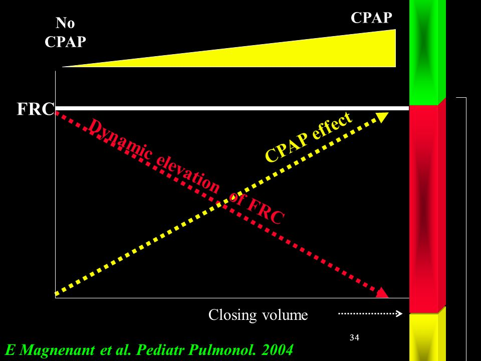34 CPAP effect Dynamic elevation of FRC FRC Closing volume No CPAP E Magnenant et al.