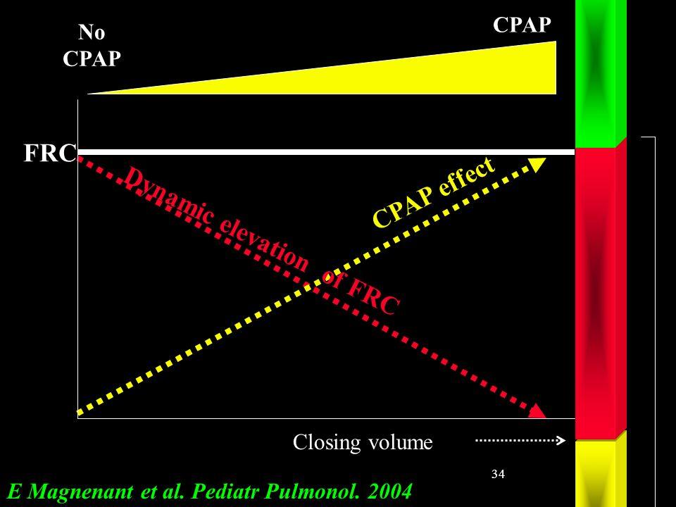 34 CPAP effect Dynamic elevation of FRC FRC Closing volume No CPAP E Magnenant et al. Pediatr Pulmonol. 2004