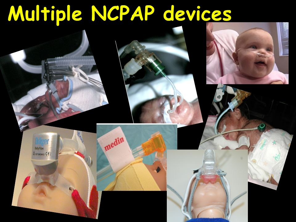 Multiple NCPAP devices