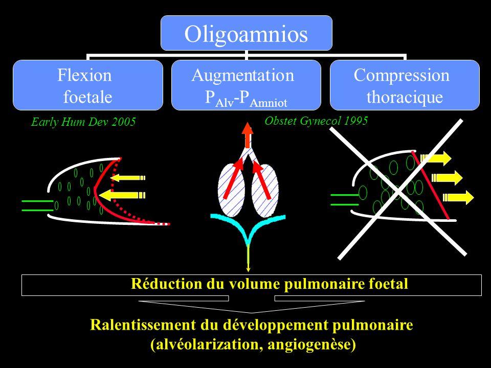 Réduction du volume pulmonaire foetal Ralentissement du développement pulmonaire (alvéolarization, angiogenèse) Early Hum Dev 2005 Obstet Gynecol 1995
