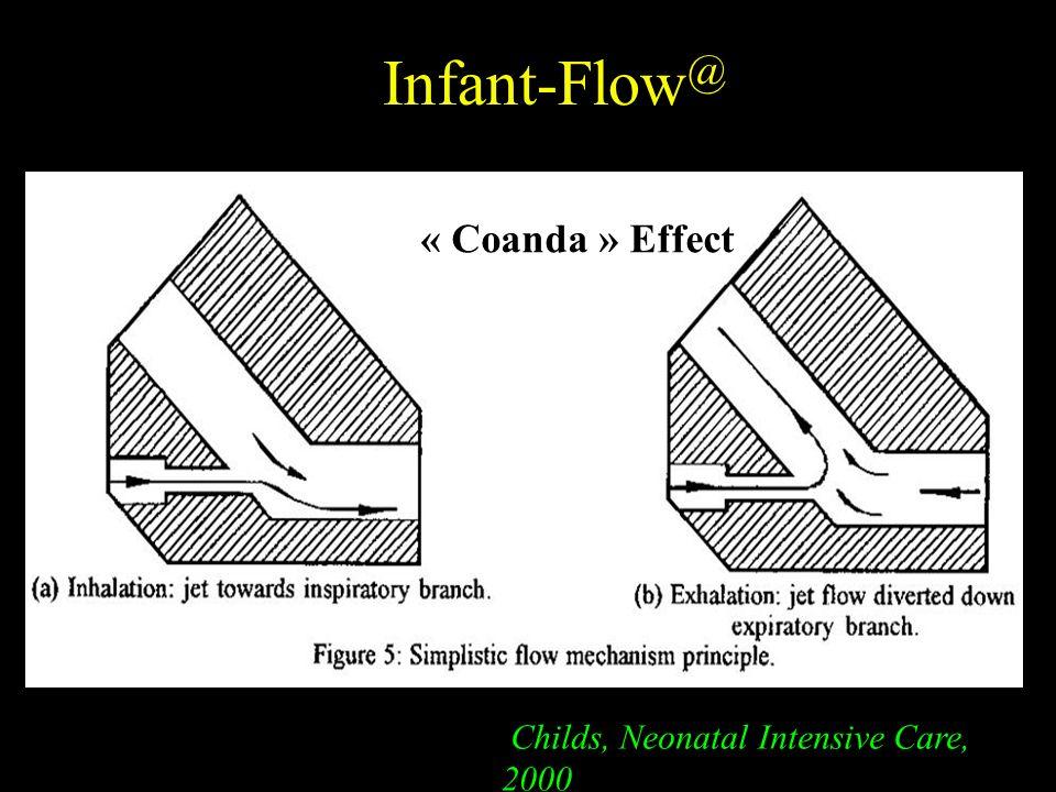 Infant-Flow @ Childs, Neonatal Intensive Care, 2000 « Coanda » Effect