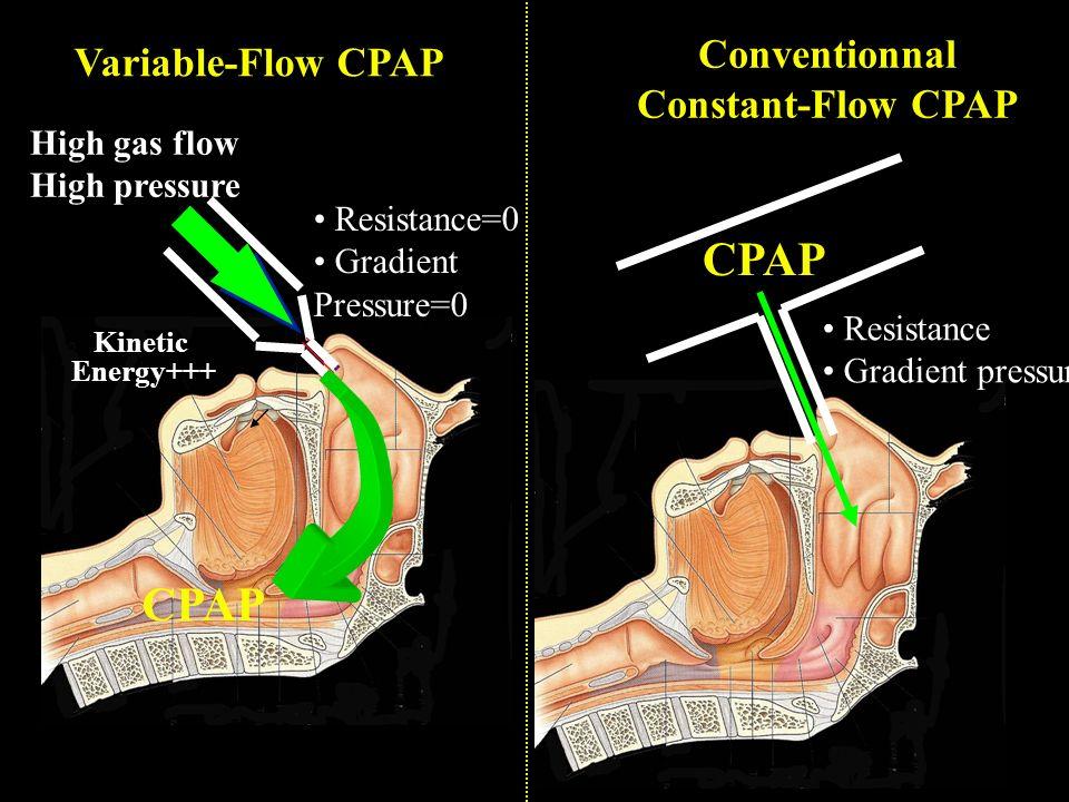 47 High gas flow High pressure CPAP Kinetic Energy+++ CPAP Resistance Gradient pressure Variable-Flow CPAP Conventionnal Constant-Flow CPAP Resistance