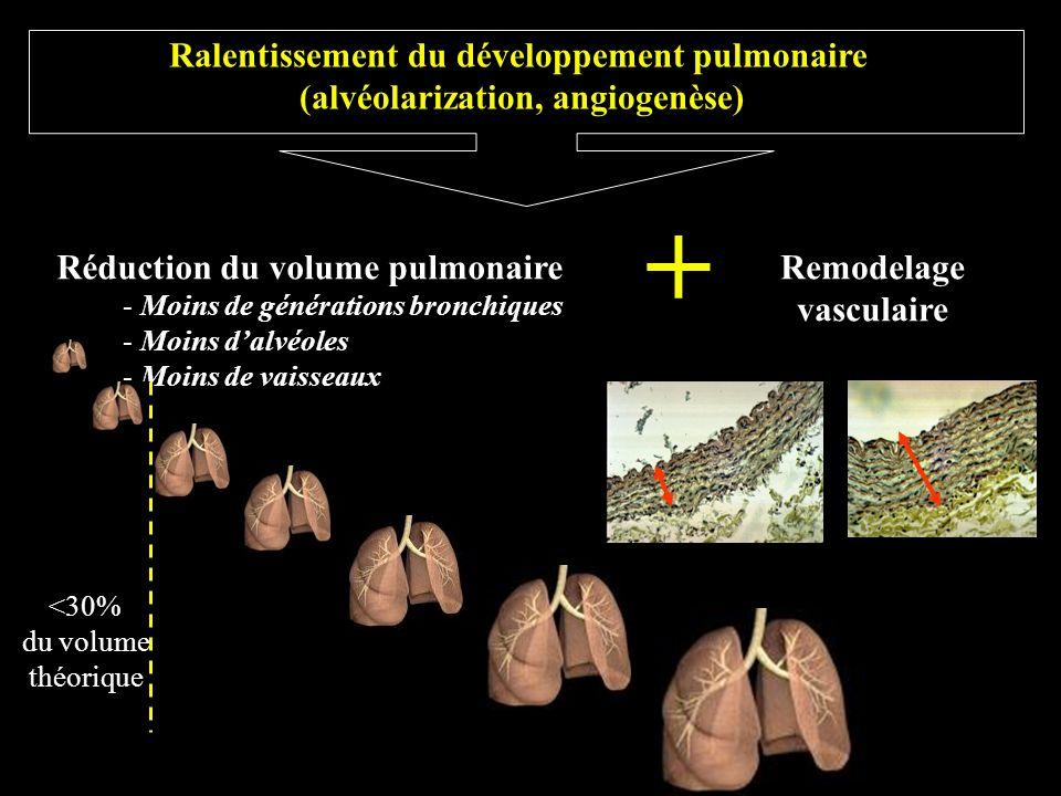 Ralentissement du développement pulmonaire (alvéolarization, angiogenèse) Réduction du volume pulmonaire - Moins de générations bronchiques - Moins da