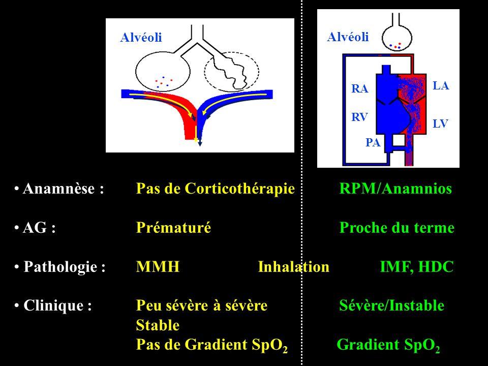 LA LV RA RV PA Alvéoli Anamnèse :Pas de CorticothérapieRPM/Anamnios AG : PrématuréProche du terme Pathologie :MMH InhalationIMF, HDC Clinique :Peu sév