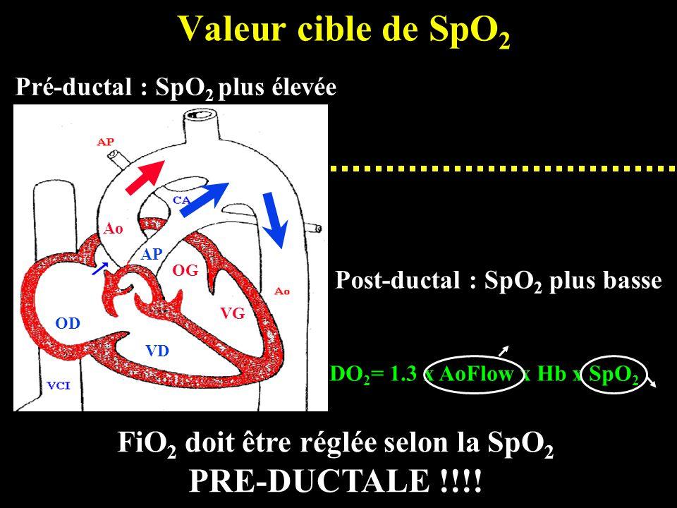 Valeur cible de SpO 2 Pré-ductal : SpO 2 plus élevée Post-ductal : SpO 2 plus basse DO 2 = 1.3 x AoFlow x Hb x SpO 2 FiO 2 doit être réglée selon la S