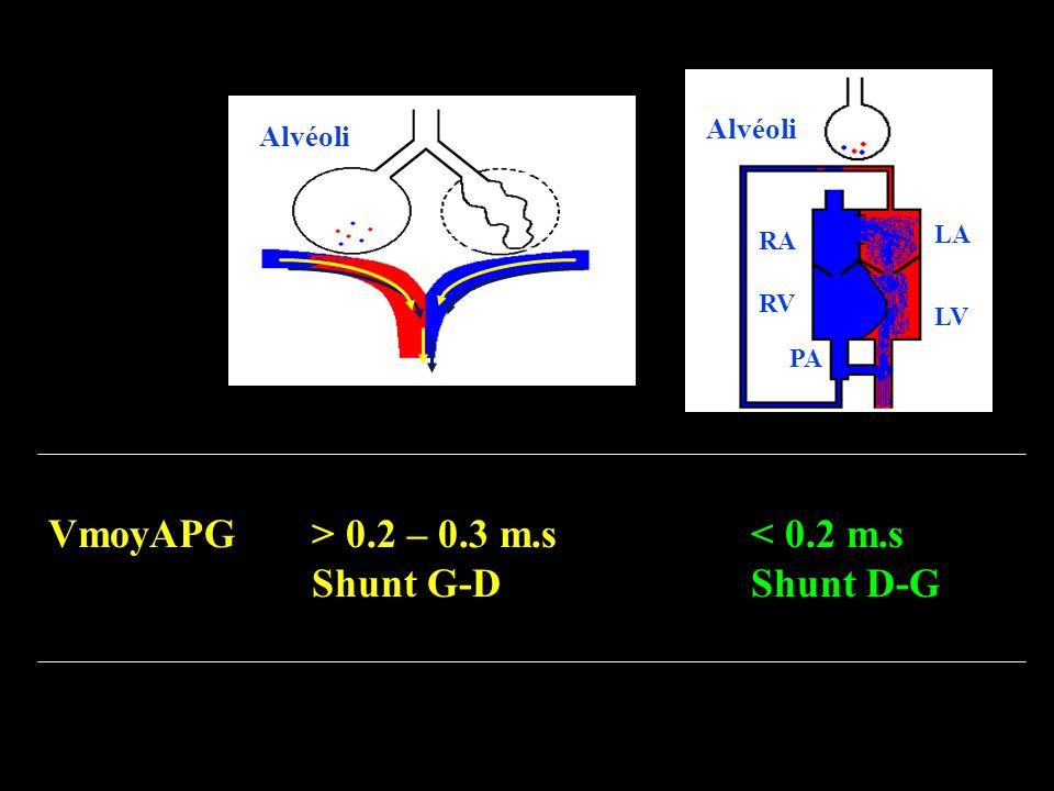 LA LV RA RV PA Alvéoli VmoyAPG > 0.2 – 0.3 m.s< 0.2 m.s Shunt G-DShunt D-G