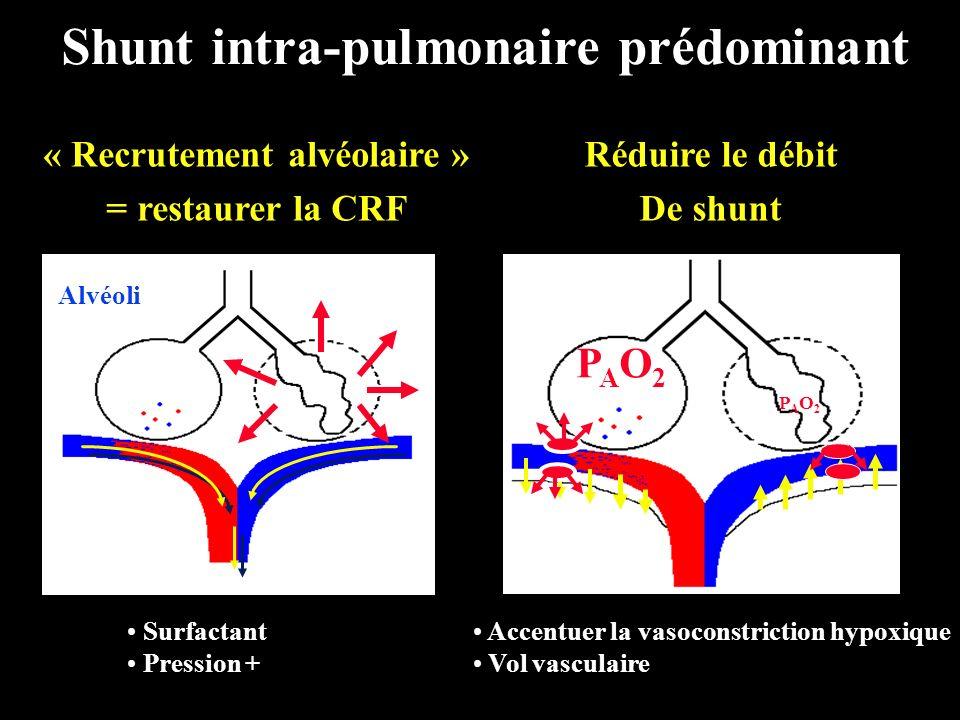 Shunt intra-pulmonaire prédominant « Recrutement alvéolaire » = restaurer la CRF Alvéoli PAO2PAO2 PAO2PAO2 Réduire le débit De shunt Surfactant Pressi