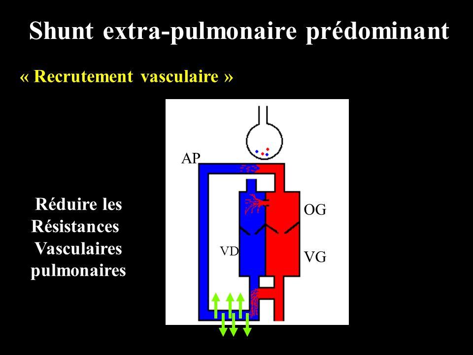 Shunt extra-pulmonaire prédominant « Recrutement vasculaire » OG VG RARA VD AP PV Réduire les Résistances Vasculaires pulmonaires