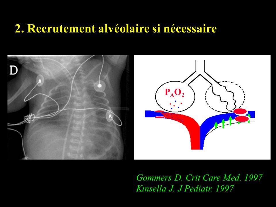 2. Recrutement alvéolaire si nécessaire PAO2PAO2 Gommers D. Crit Care Med. 1997 Kinsella J. J Pediatr. 1997