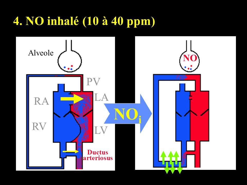 NO Alveole PV RA RV LA LV Ductus arteriosus NO i 4. NO inhalé (10 à 40 ppm)