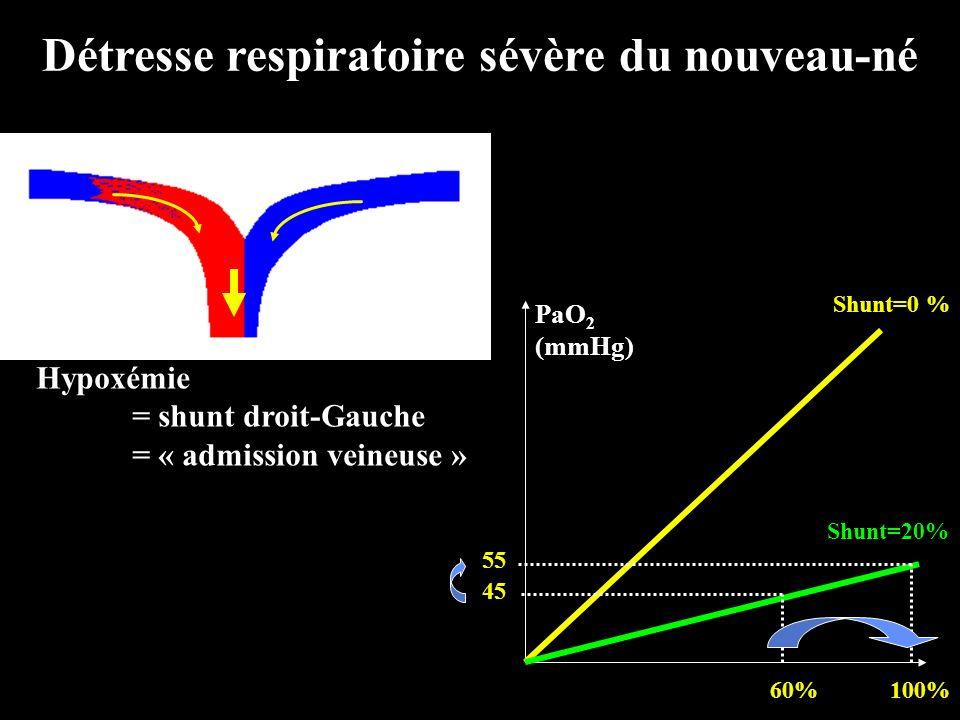 Détresse respiratoire sévère du nouveau-né Hypoxémie = shunt droit-Gauche = « admission veineuse » 100%60% PaO 2 (mmHg) 45 Shunt=0 % Shunt=20% 55