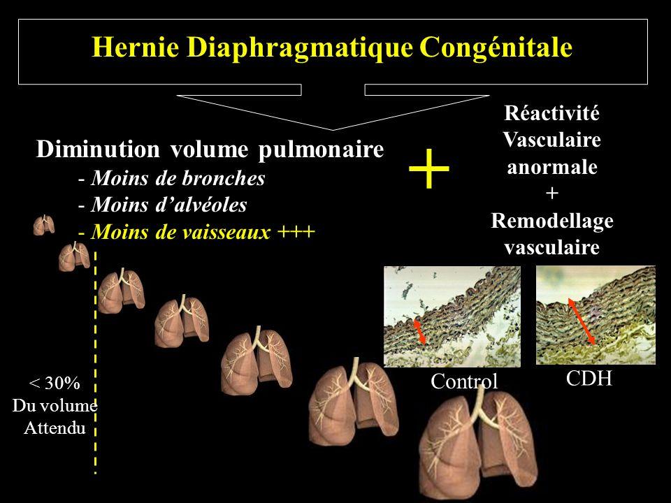 Hernie Diaphragmatique Congénitale Diminution volume pulmonaire - Moins de bronches - Moins dalvéoles - Moins de vaisseaux +++ Réactivité Vasculaire a
