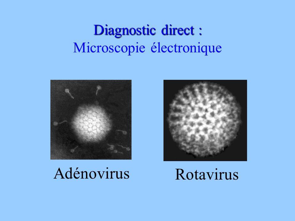 Diagnostic direct : Microscopie électronique Adénovirus Rotavirus