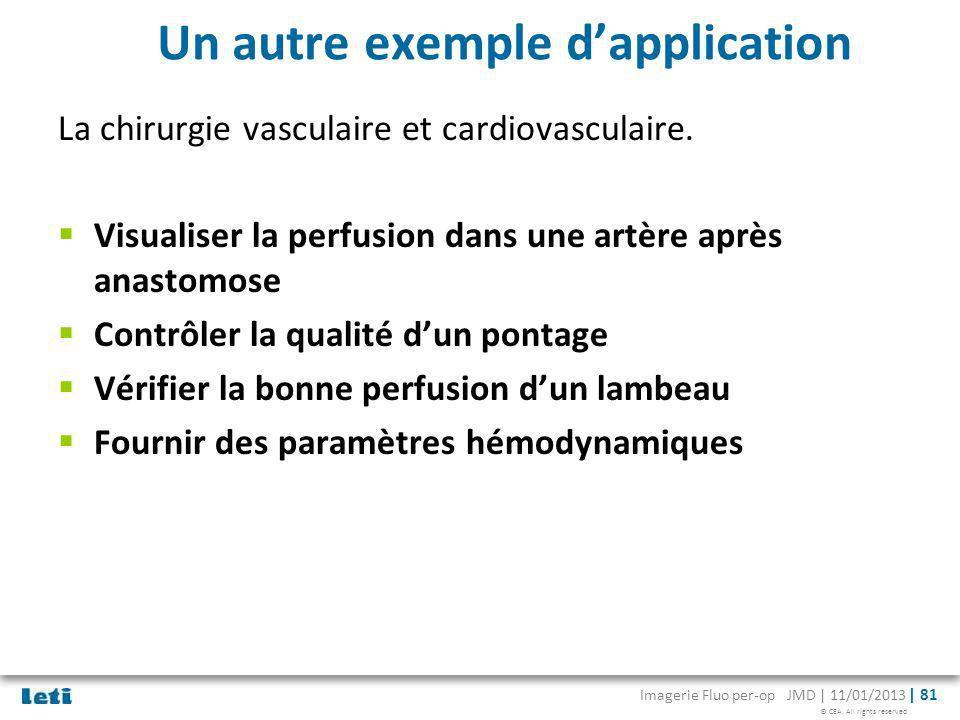 © CEA. All rights reserved Imagerie Fluo per-op JMD | 11/01/2013 | 81 Un autre exemple dapplication La chirurgie vasculaire et cardiovasculaire. Visua