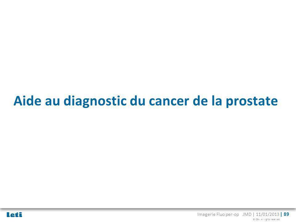 © CEA. All rights reserved Imagerie Fluo per-op JMD | 11/01/2013 | 89 Aide au diagnostic du cancer de la prostate