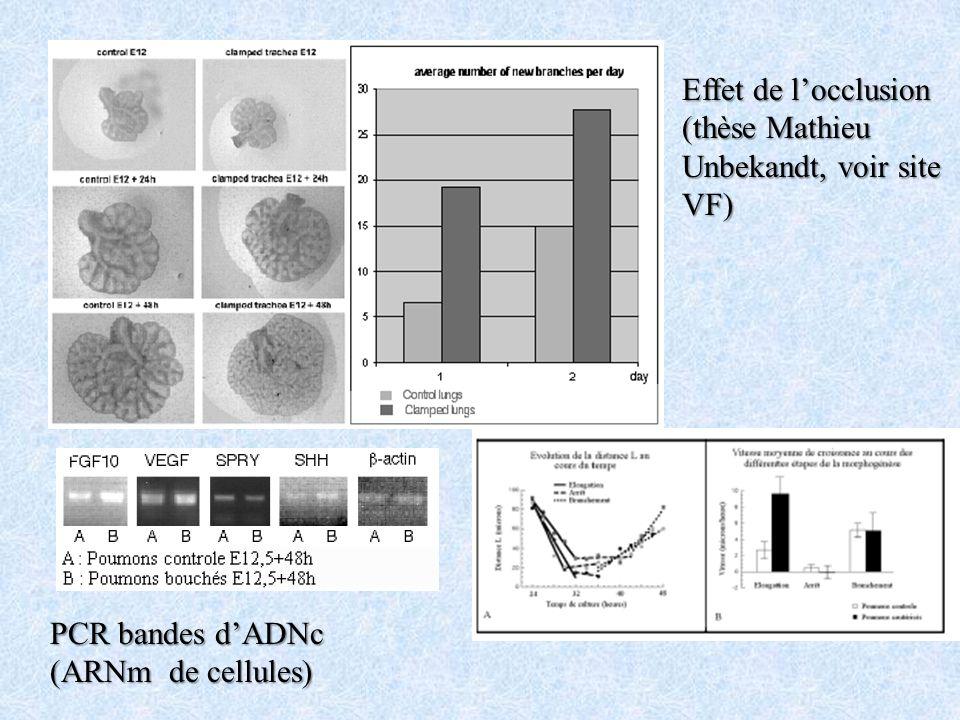 PCR bandes dADNc (ARNm de cellules) Effet de locclusion (thèse Mathieu Unbekandt, voir site VF)