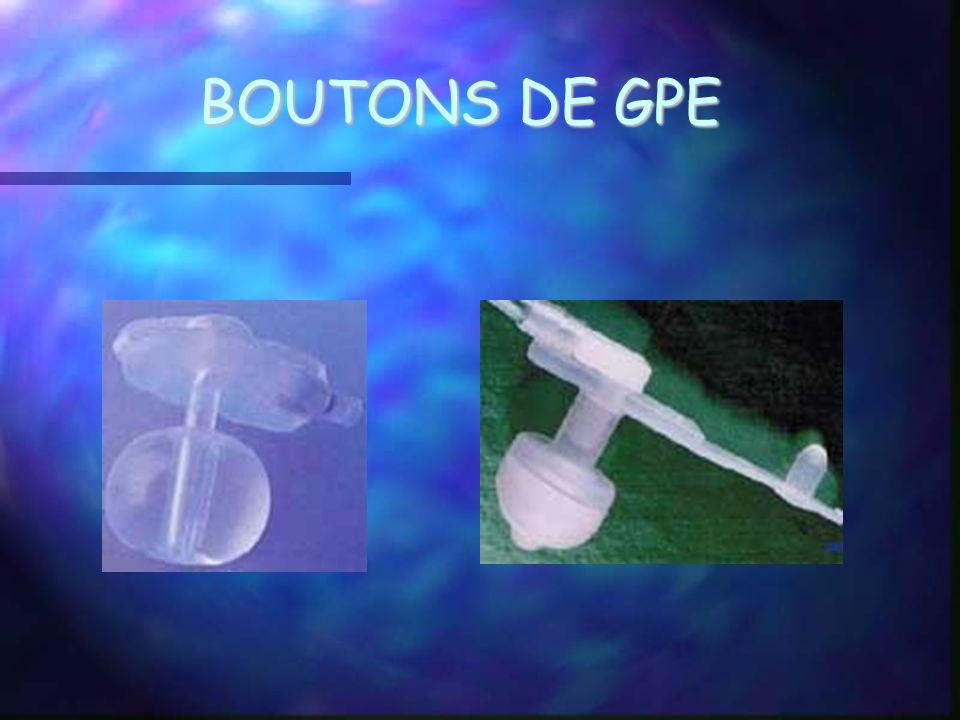 BOUTONS DE GPE