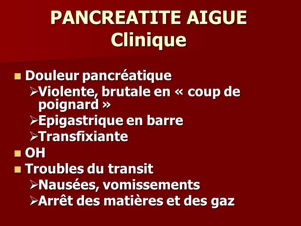 PANCREATITE AIGUE Clinique Douleur pancréatique Douleur pancréatique Violente, brutale en « coup de poignard » Violente, brutale en « coup de poignard