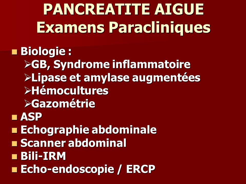 PANCREATITE AIGUE Examens Paracliniques Biologie : Biologie : GB, Syndrome inflammatoire GB, Syndrome inflammatoire Lipase et amylase augmentées Lipas