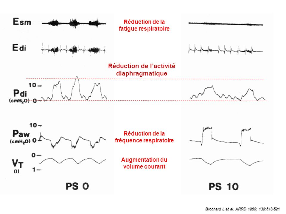 Brochard L et al. ARRD 1989; 139:513-521 Réduction de la fatigue respiratoire Réduction de lactivité diaphragmatique Réduction de la fréquence respira