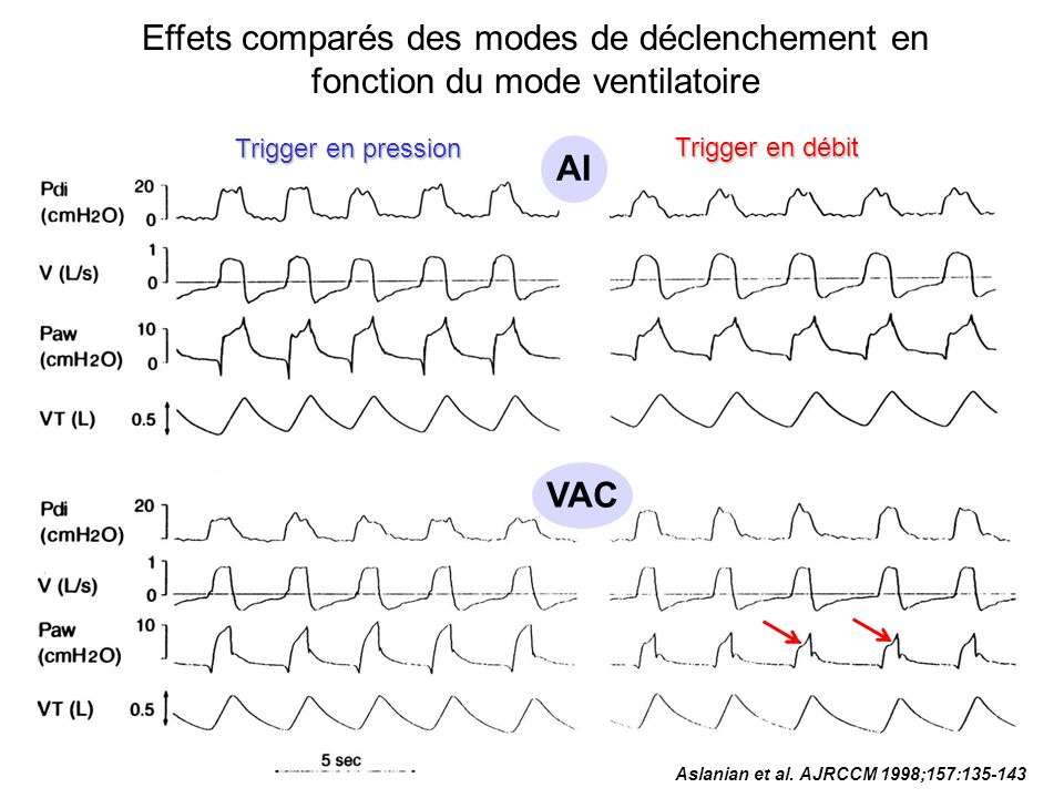 Une baisse de la sensibilité des seuils de déclenchement augmente le travail respiratoire * 24 L/min 12 L/min -2 cmH 2 O -5 cmH 2 O Active Work ( j / L) 1.5 1.0 0.5 0.0 Marini et al.