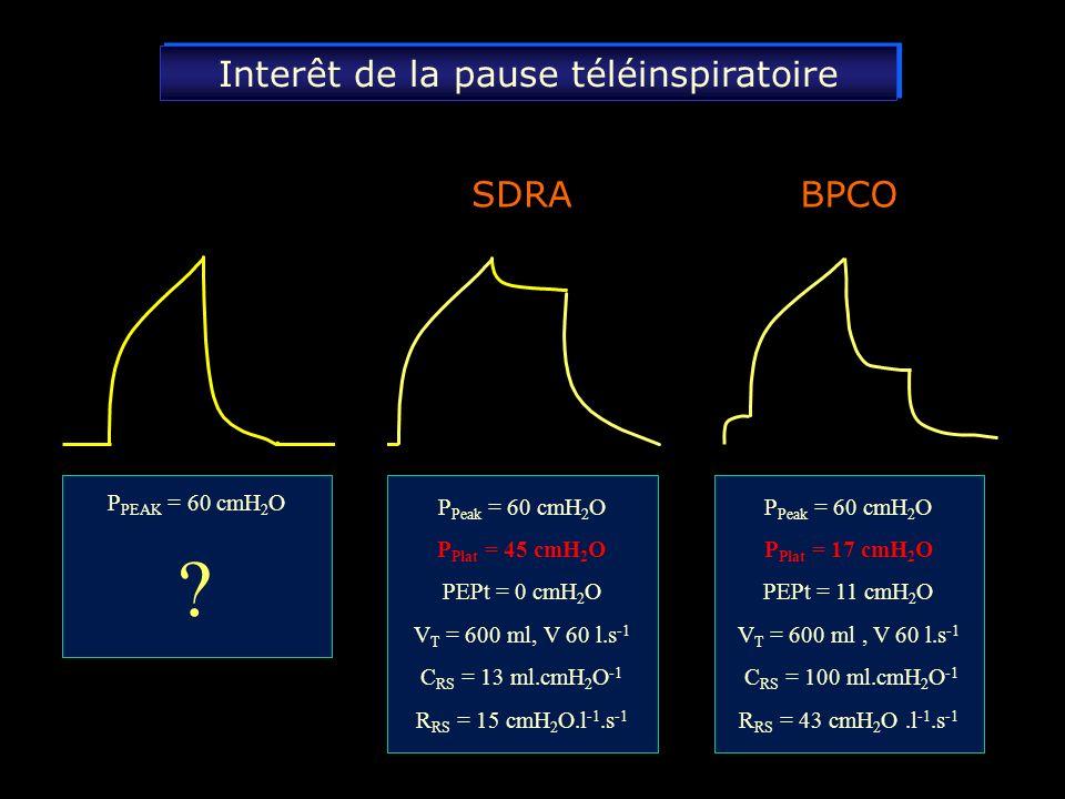 secondes 40 20 40 20 0 Débit ( l.min -1 ) secondes déclenchement 30 20 0 Paw (cmH 2 0) 10 Débit déccélérant Ventilation en pression contrôlée Le volume courant est contrôlé par un débit inspiratoire déccélérant On doit régler : - le V T = 7-8 ml.kg -1 - la FR = 15-20 c.min -1 - I / I+E = 33-50 % - FIO 2 = 30-60 % On doit régler : - le V T = 7-8 ml.kg -1 - la FR = 15-20 c.min -1 - I / I+E = 33-50 % - FIO 2 = 30-60 % Il en résulte une pression de plateau