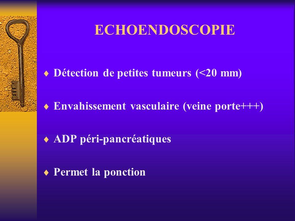 ECHOENDOSCOPIE Détection de petites tumeurs (<20 mm) Envahissement vasculaire (veine porte+++) ADP péri-pancréatiques Permet la ponction