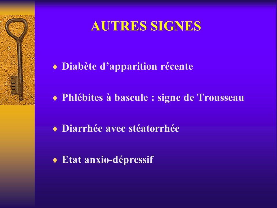 AUTRES SIGNES Diabète dapparition récente Phlébites à bascule : signe de Trousseau Diarrhée avec stéatorrhée Etat anxio-dépressif