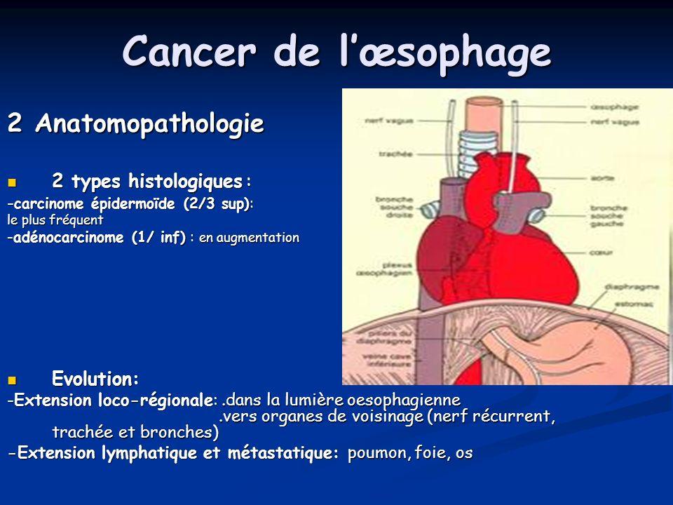 Cancer de lœsophage 2 Anatomopathologie 2 types histologiques : 2 types histologiques : - carcinome épidermoïde (2/3 sup): le plus fréquent -adénocarc