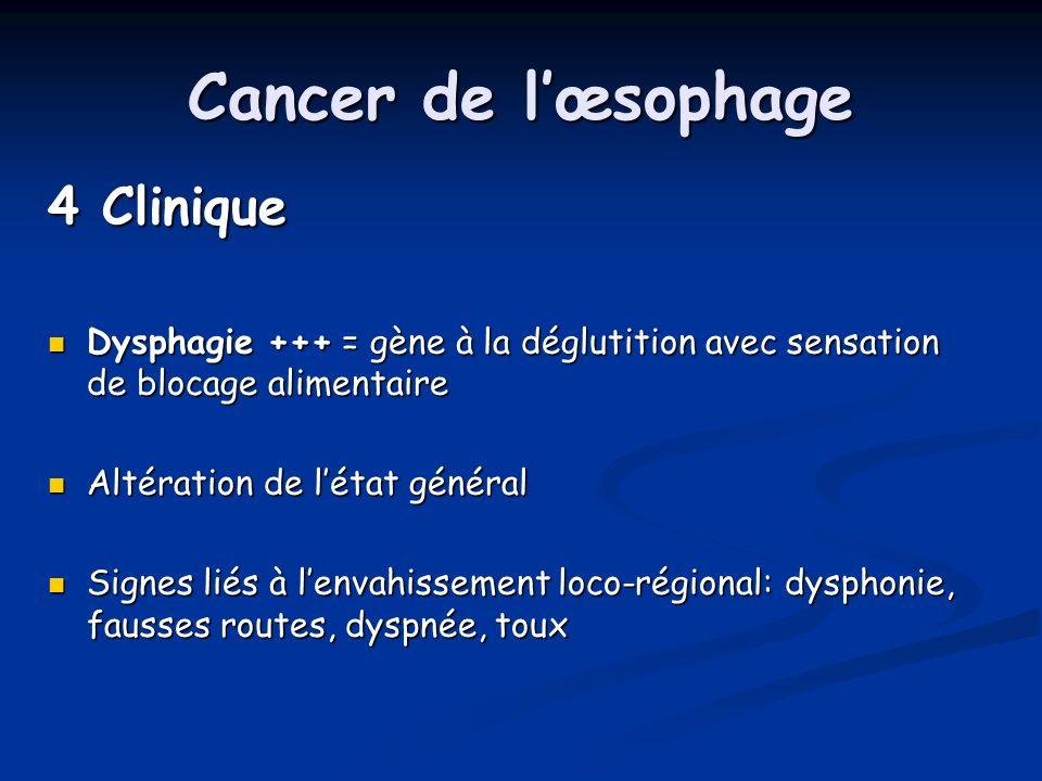 Cancer de lœsophage 4 Clinique Dysphagie +++ = gène à la déglutition avec sensation de blocage alimentaire Dysphagie +++ = gène à la déglutition avec