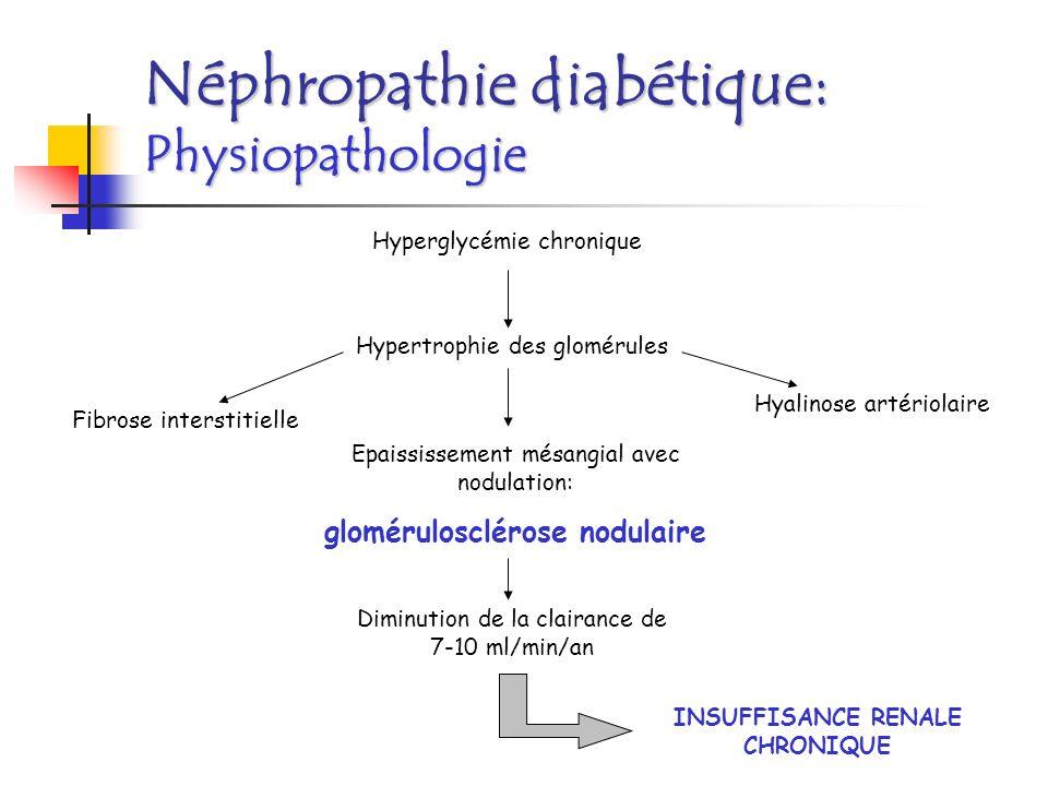 Néphropathie diabétique: Histologie Glomérulosclérose débutante avec épaississement modéré du mésangium et de la capsule de Bowman.