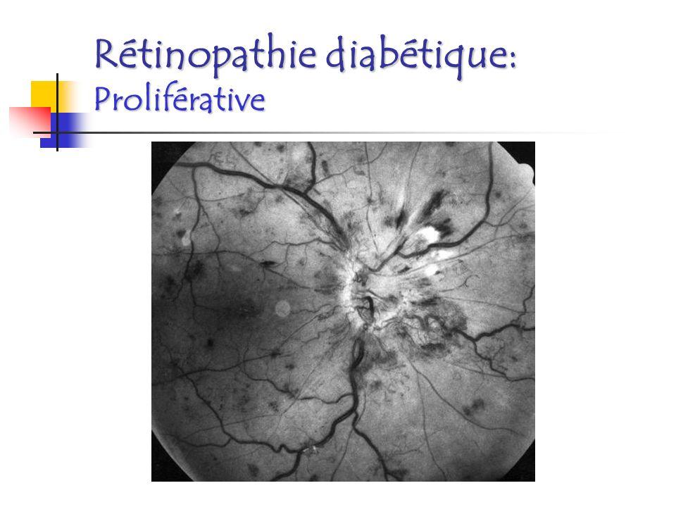 Rétinopathie diabétique: Proliférative