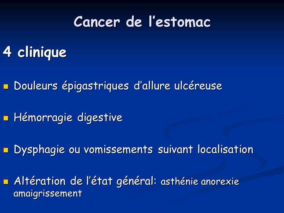 Cancer de lestomac 5 Diagnostic Endoscopie + biopsie: siège, taille, aspect, extension, ana-path Endoscopie + biopsie: siège, taille, aspect, extension, ana-path Transit oeso-gastro- duodénal: si sténose infranchissable Transit oeso-gastro- duodénal: si sténose infranchissable