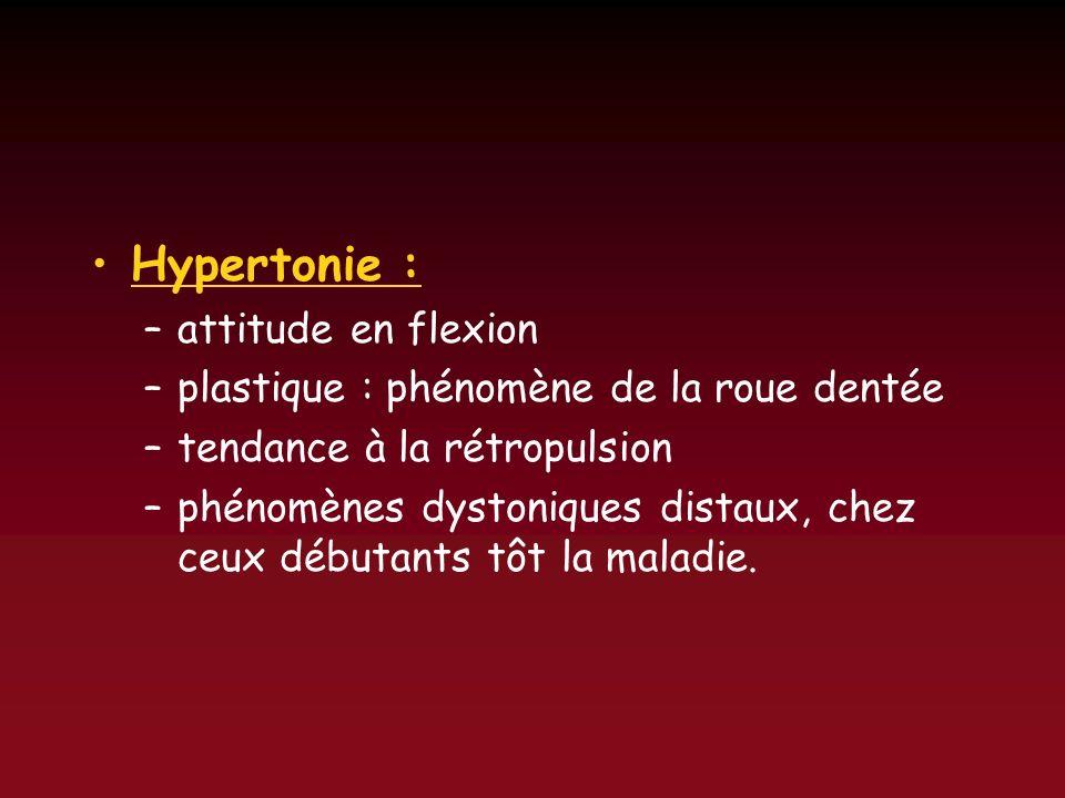 Hypertonie : –attitude en flexion –plastique : phénomène de la roue dentée –tendance à la rétropulsion –phénomènes dystoniques distaux, chez ceux débu