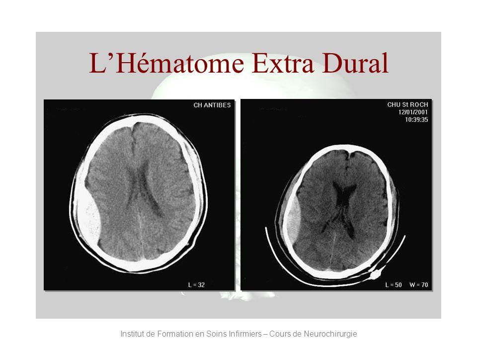Institut de Formation en Soins Infirmiers – Cours de Neurochirurgie LHématome Extra Dural
