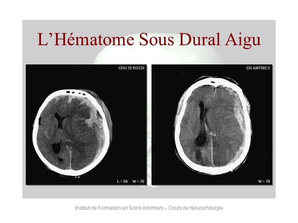 Institut de Formation en Soins Infirmiers – Cours de Neurochirurgie LHématome Sous Dural Aigu