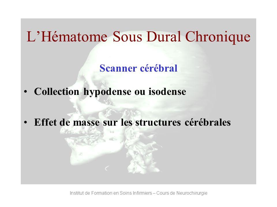 Institut de Formation en Soins Infirmiers – Cours de Neurochirurgie LHématome Sous Dural Chronique Scanner cérébral Collection hypodense ou isodense E