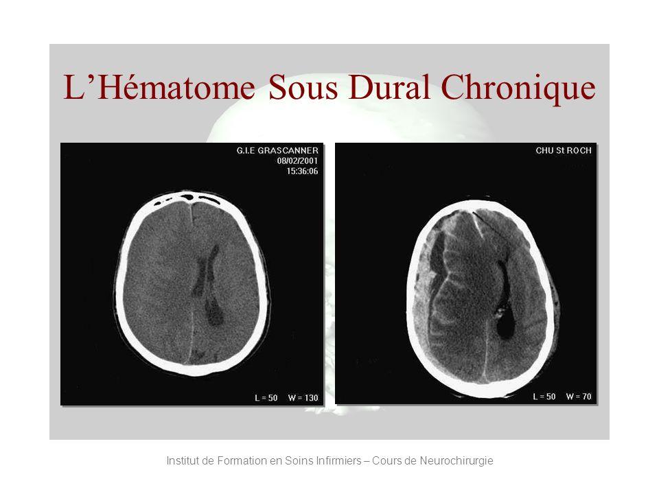 Institut de Formation en Soins Infirmiers – Cours de Neurochirurgie LHématome Sous Dural Chronique