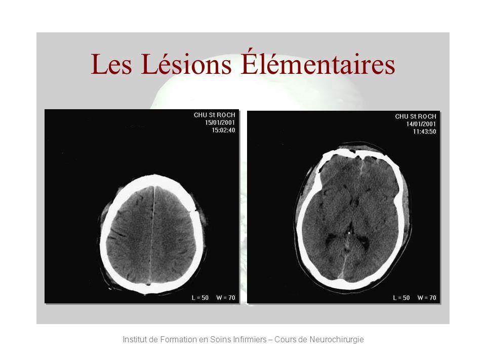 Institut de Formation en Soins Infirmiers – Cours de Neurochirurgie Les Lésions Élémentaires