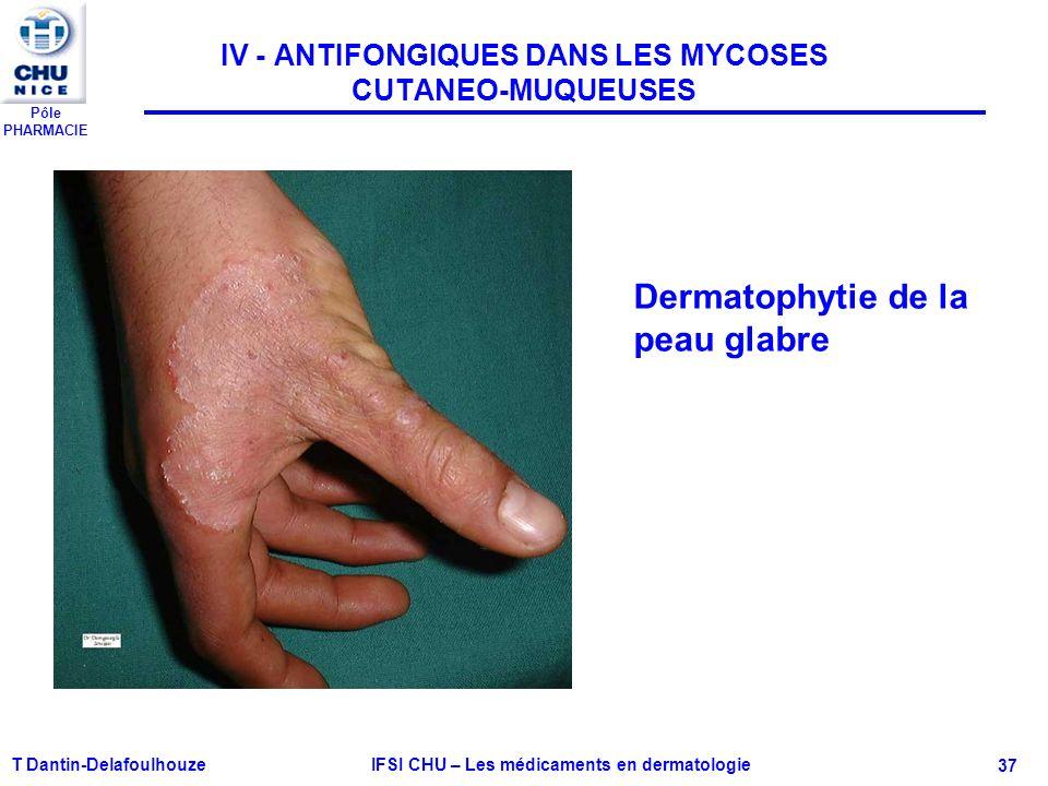 Pôle PHARMACIE T Dantin-Delafoulhouze IFSI CHU – Les médicaments en dermatologie - 37 IV - ANTIFONGIQUES DANS LES MYCOSES CUTANEO-MUQUEUSES Dermatophy