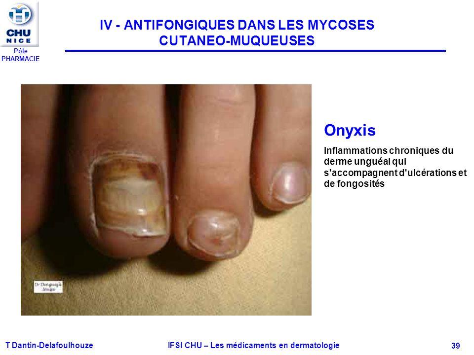 Pôle PHARMACIE T Dantin-Delafoulhouze IFSI CHU – Les médicaments en dermatologie - 39 IV - ANTIFONGIQUES DANS LES MYCOSES CUTANEO-MUQUEUSES Onyxis Inf