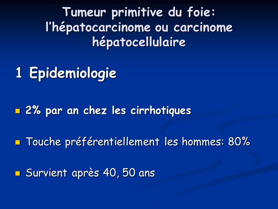 Tumeur primitive du foie: lhépatocarcinome ou carcinome hépatocellulaire 1 Epidemiologie 2% par an chez les cirrhotiques 2% par an chez les cirrhotiqu