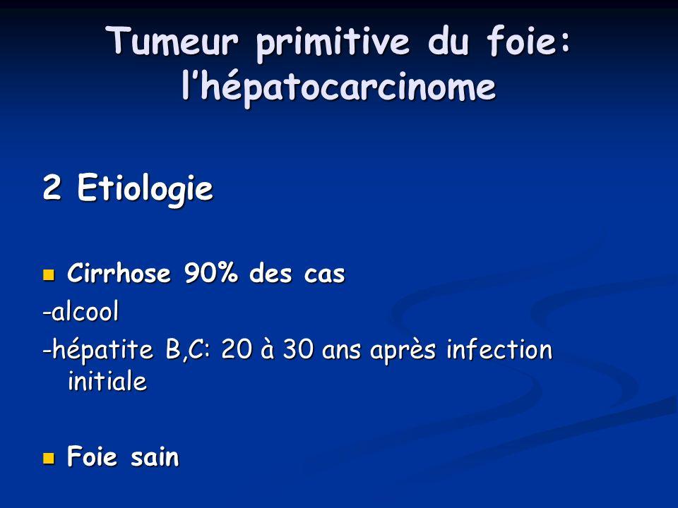 Tumeur primitive du foie: lhépatocarcinome 2 Etiologie Cirrhose 90% des cas Cirrhose 90% des cas-alcool -hépatite B,C: 20 à 30 ans après infection ini