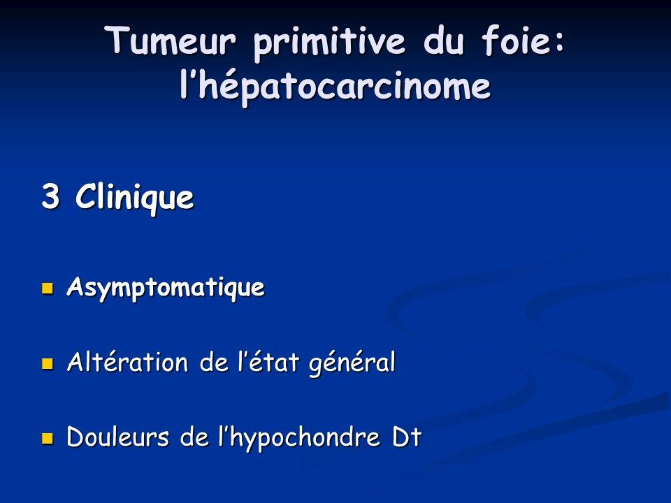 Tumeur primitive du foie: lhépatocarcinome 3 Clinique Asymptomatique Asymptomatique Altération de létat général Altération de létat général Douleurs d