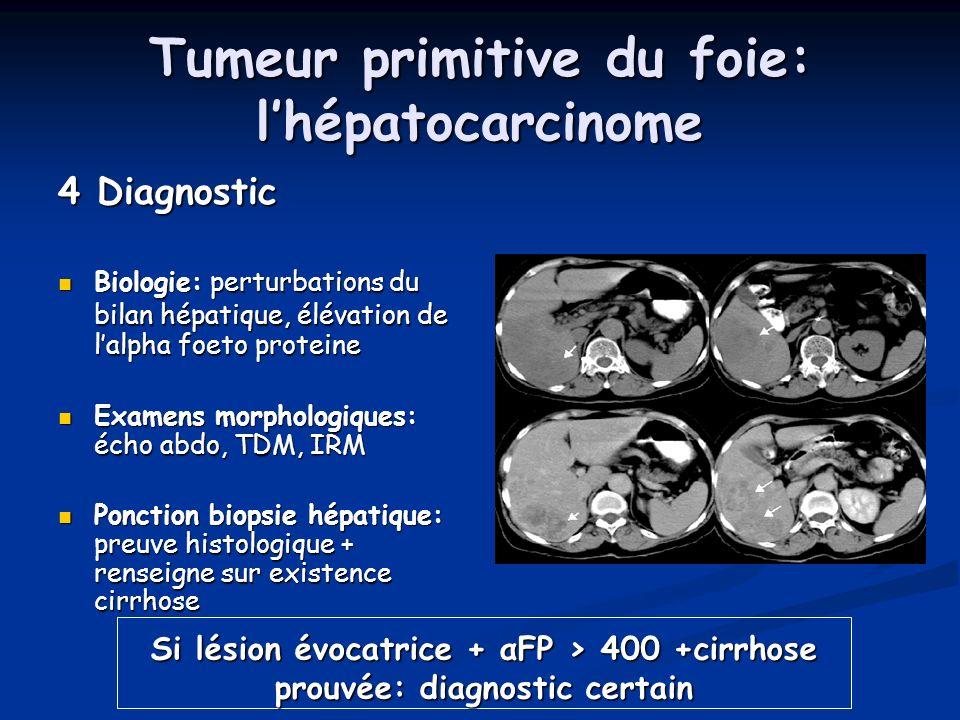 Tumeur primitive du foie: lhépatocarcinome 4 Diagnostic Biologie: perturbations du bilan hépatique, élévation de lalpha foeto proteine Biologie: pertu
