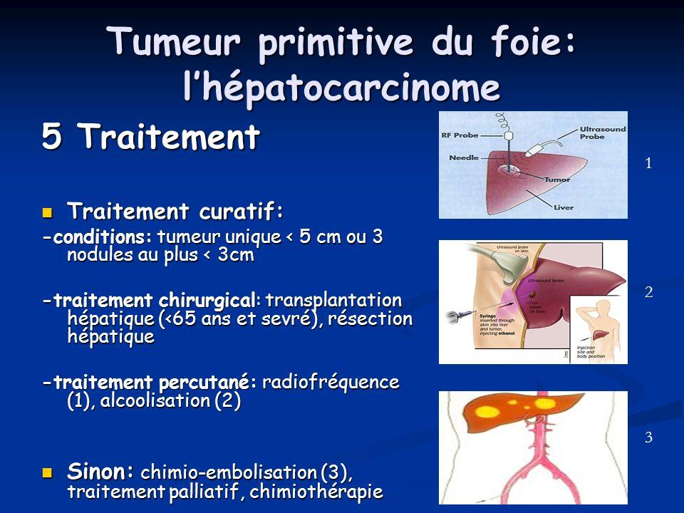 Tumeur primitive du foie: lhépatocarcinome 5 Traitement Traitement curatif: Traitement curatif: -conditions: tumeur unique < 5 cm ou 3 nodules au plus