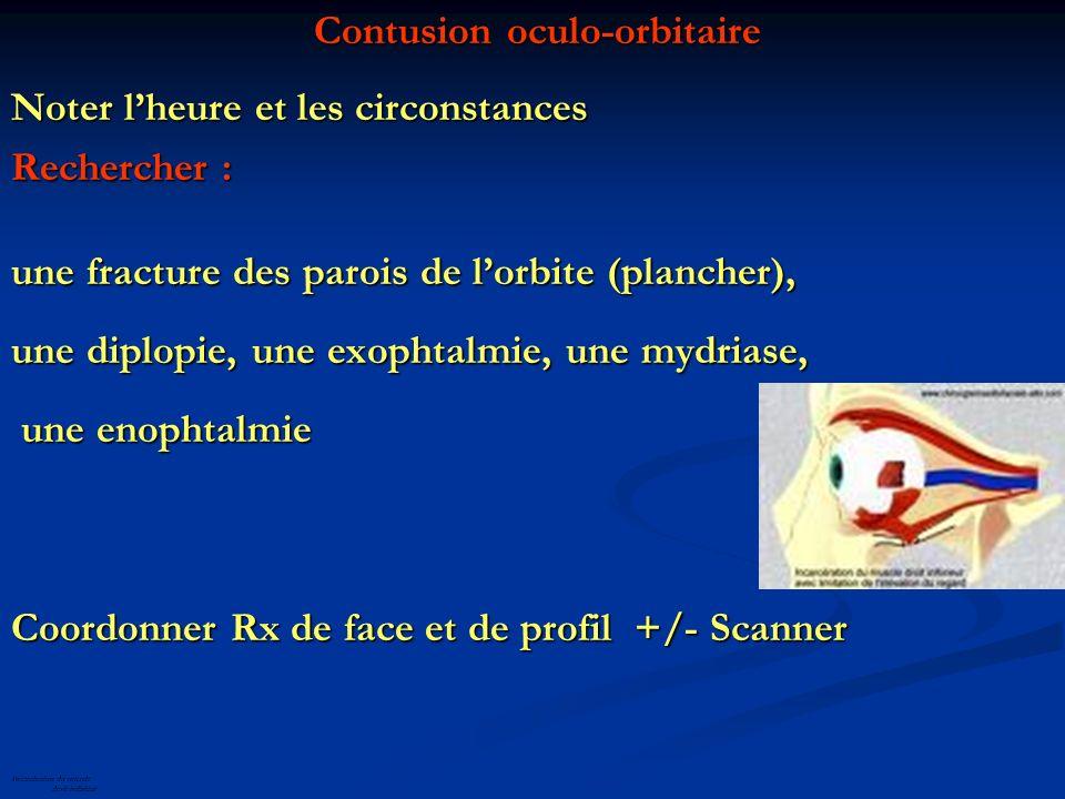 Contusion oculo-orbitaire Contusion oculo-orbitaire Noter lheure et les circonstances Rechercher : une fracture des parois de lorbite (plancher), une