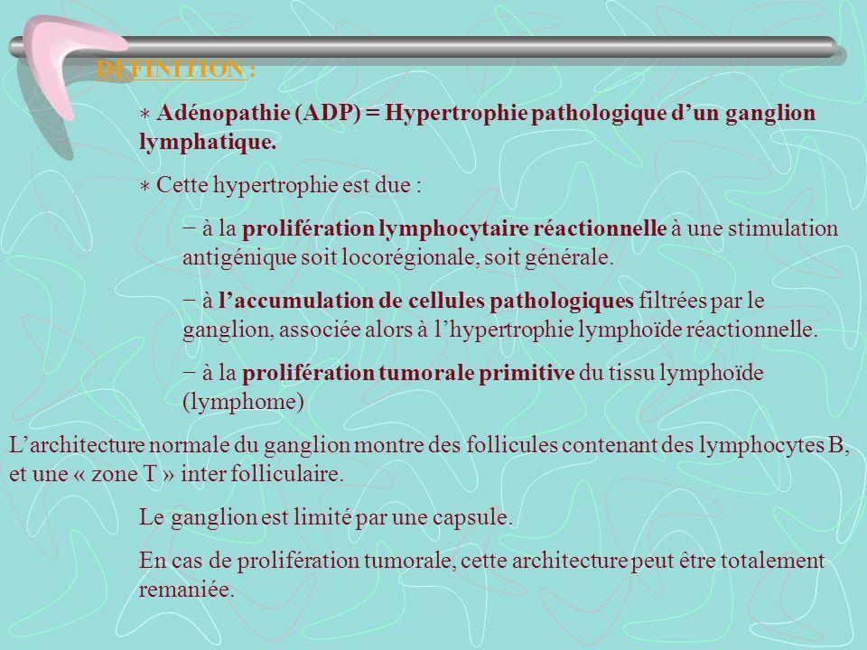 DEFINITION : Adénopathie (ADP) = Hypertrophie pathologique dun ganglion lymphatique. Cette hypertrophie est due : à la prolifération lymphocytaire réa